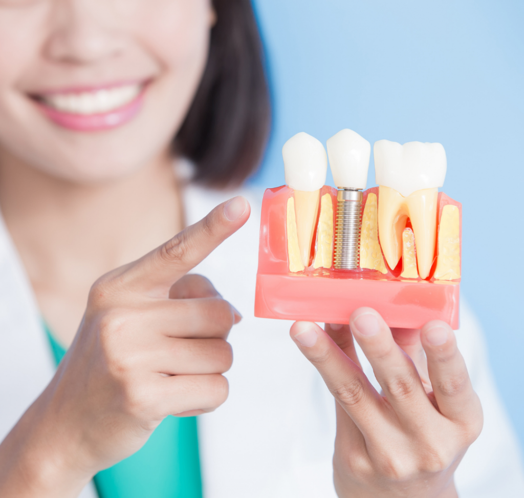 dental implants in pineville nc