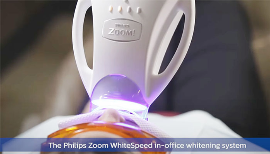 professional teeth whitening in Pineville, NC