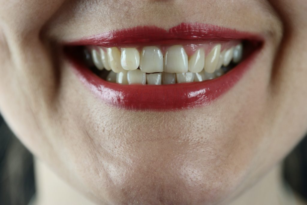 crooked teeth are common dental problems