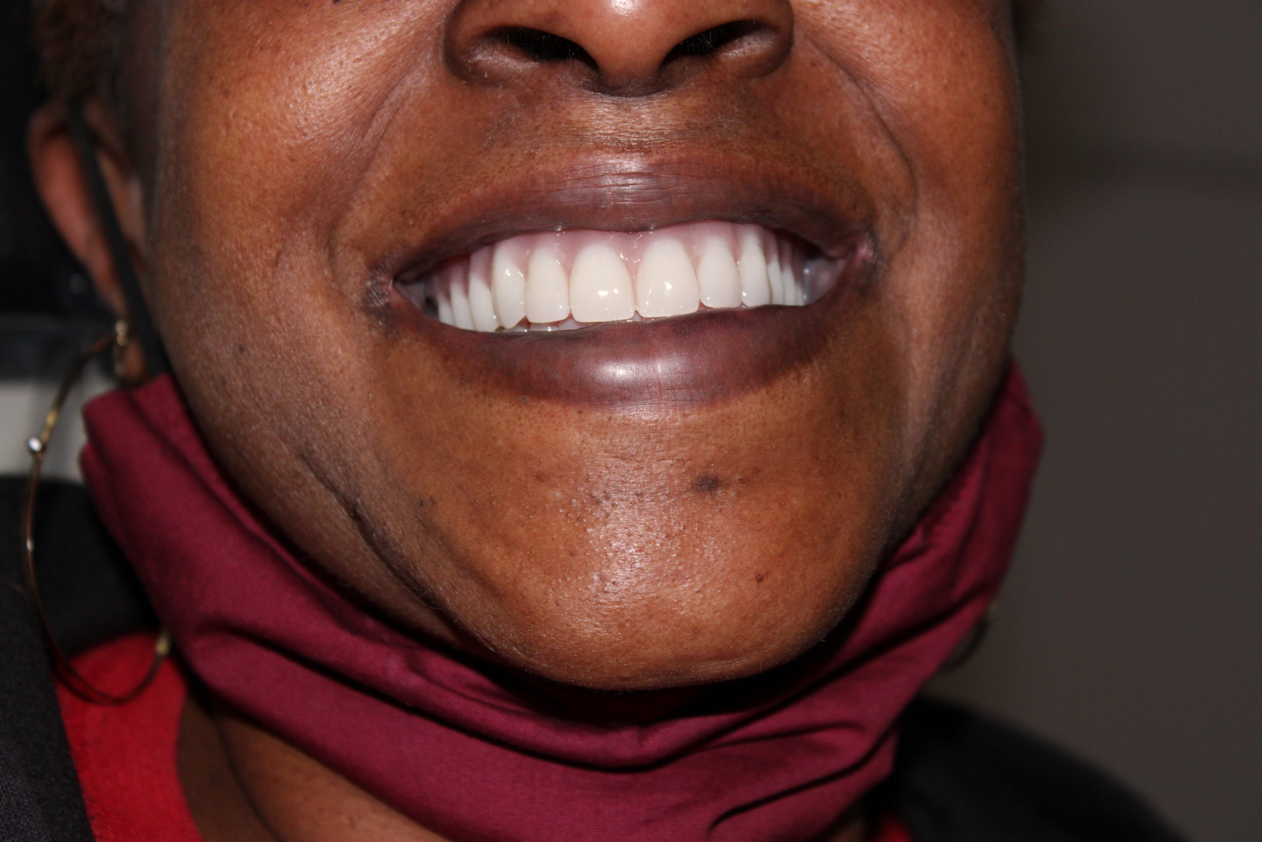 full mouth reconstruction with dental implants
