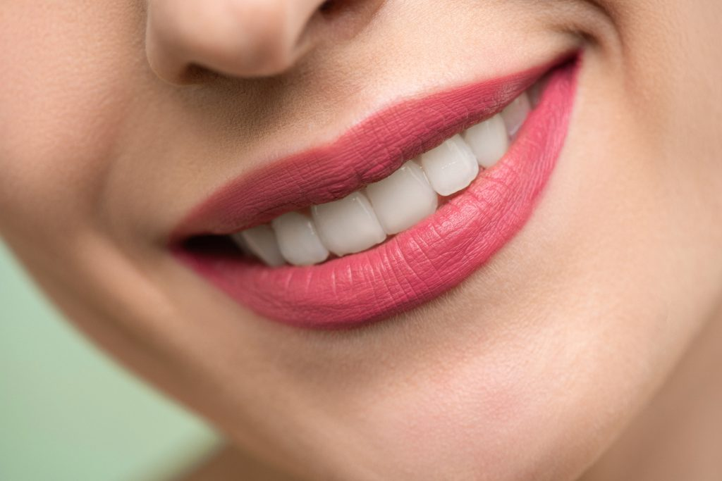 The most common teeth problems veneers can correct
